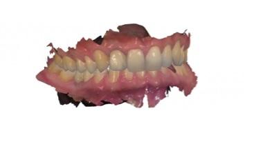 entista en mutxamel doctor javier revuelta clinica dental 1-7-21 8